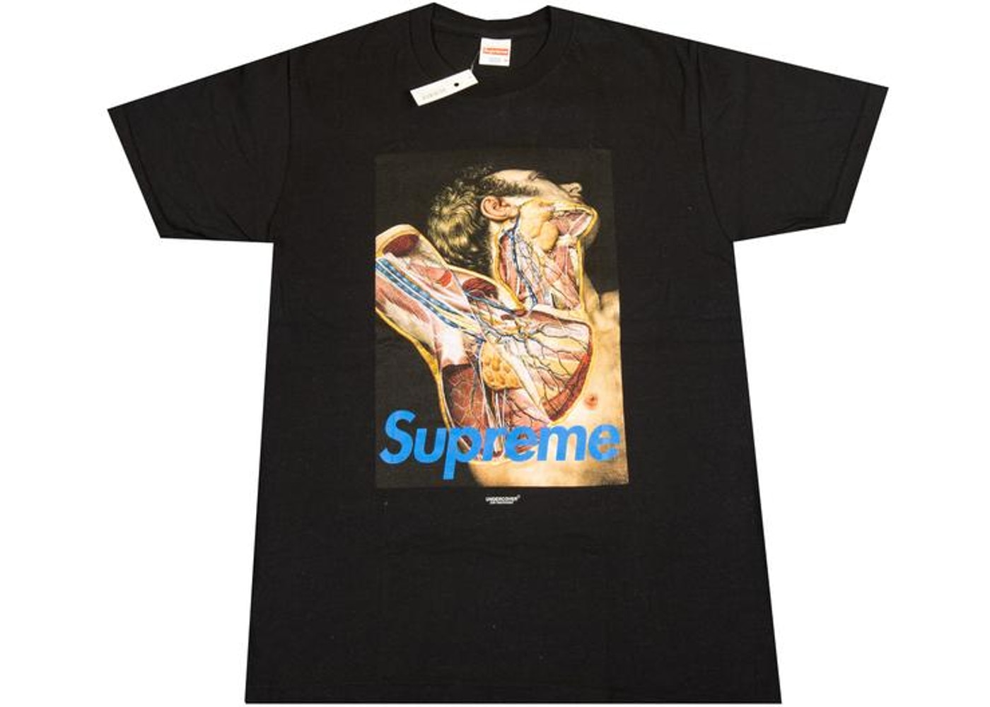 Supreme Undercover Anatomy Tee Black